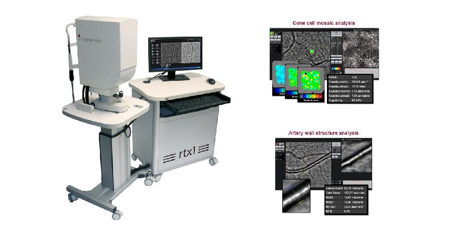article_retinal-imaging